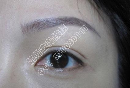 杭州纹眼线价钱